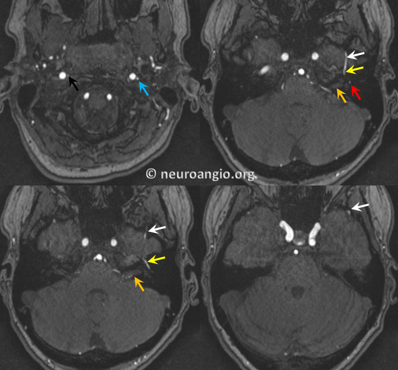 http://neuroangio.org/wp-content/uploads/AP/AP_Stapedial_Artery_MRI_2.png