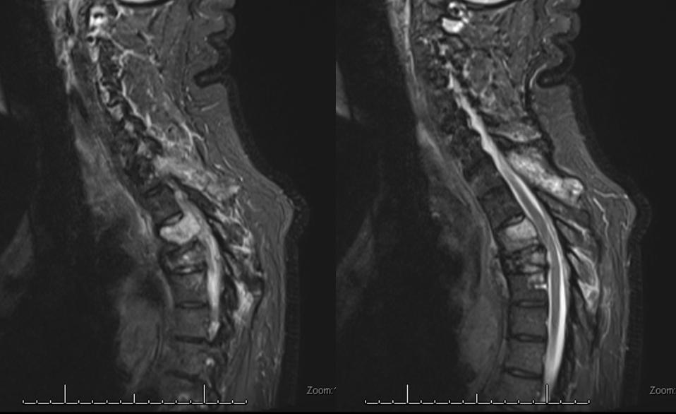 Pre-embo MRI
