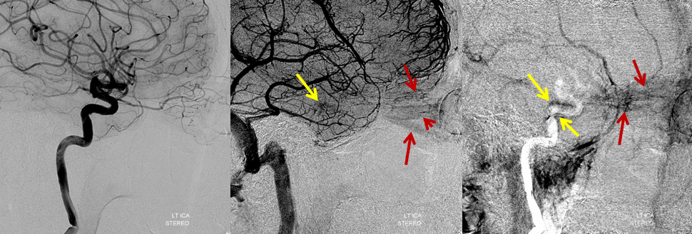 http://neuroangio.org/wp-content/uploads/Archives/Archives_Cavernous_Thrombophlebitis_2.png