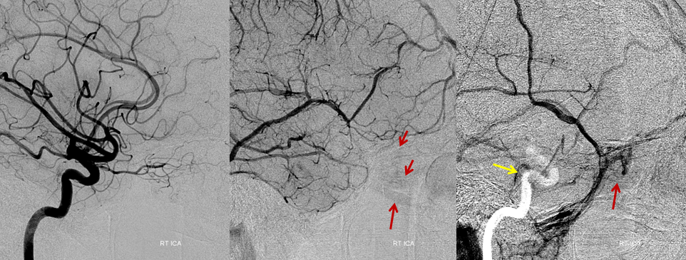 http://neuroangio.org/wp-content/uploads/Archives/Archives_Cavernous_Thrombophlebitis_5.png