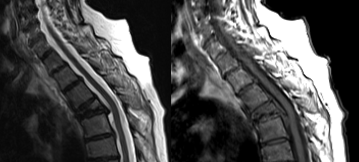 MRI vertebral collapse
