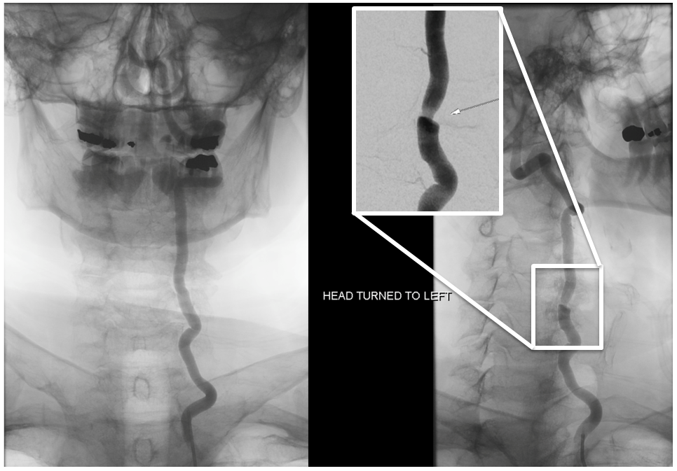 Bow Hunter Syndrome angio frontal views