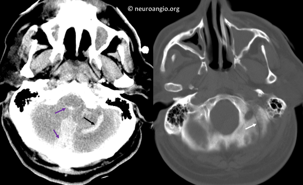 http://neuroangio.org/wp-content/uploads/Archives/Case_Archives_occipital_dural_fistula_1.png