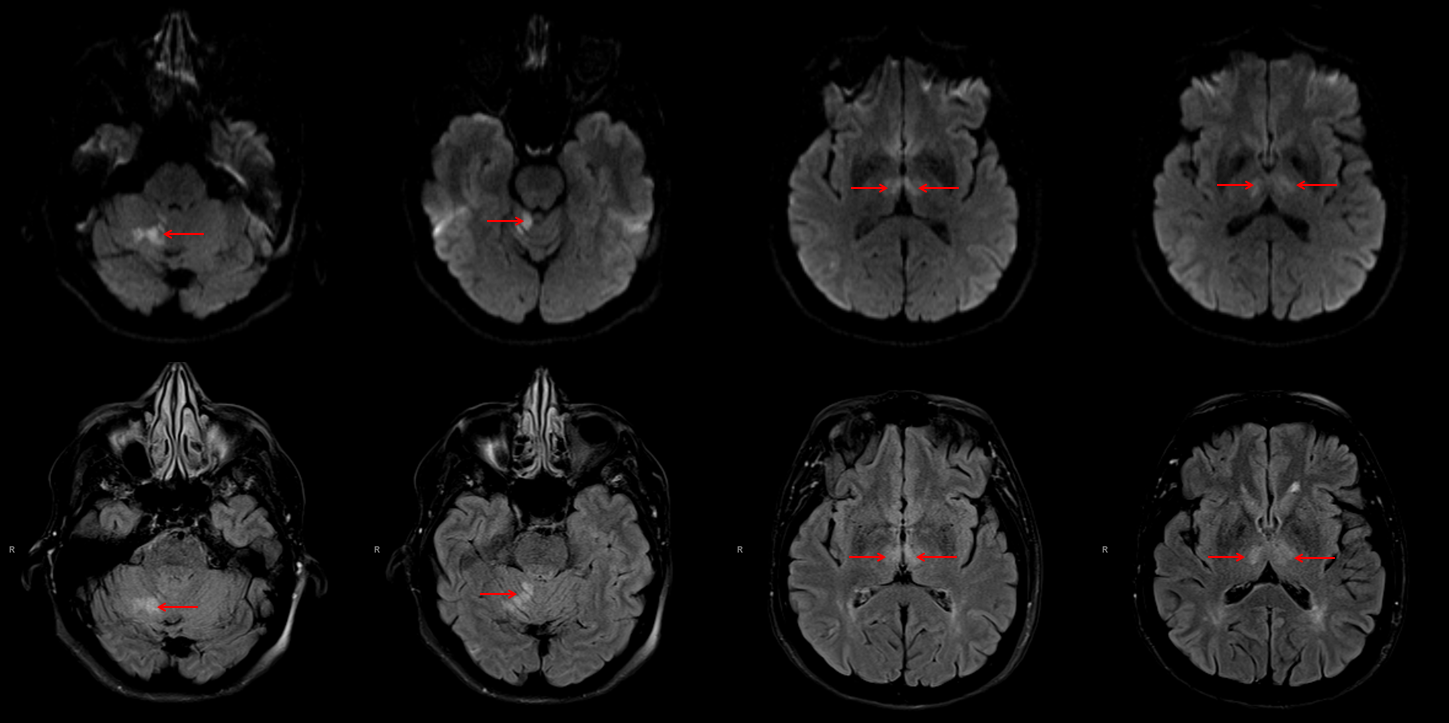Archives — CT Perfusion of Artery of Percheron Occlusion ...
