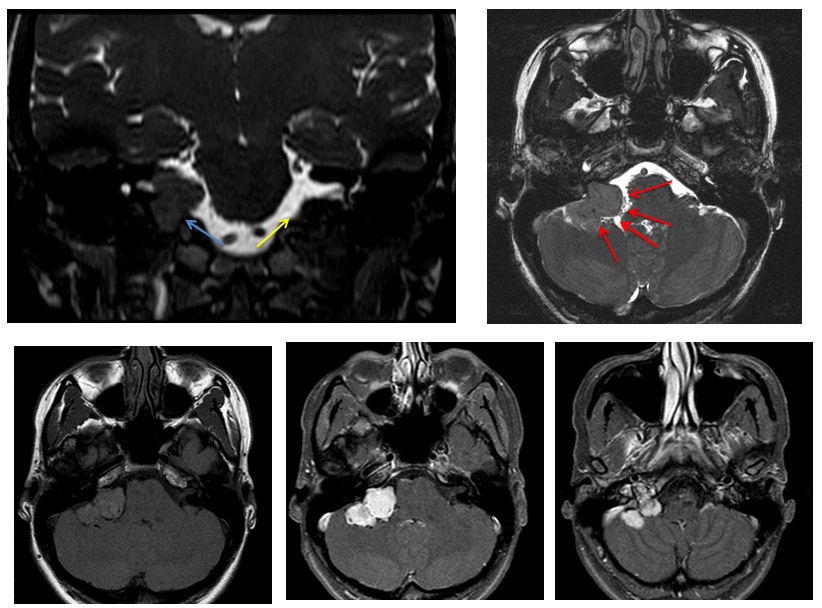Case Archives — Differential Diagnosis of Skull Base Lesion ...