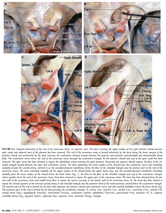 All About Internal Carotid Artery And Its Aneurysms Neuroangioorg