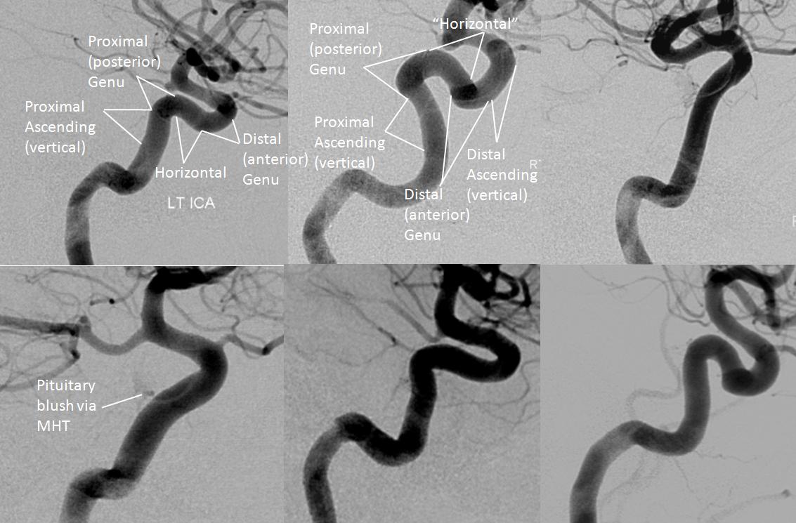 Internal Carotid Artery and Its Aneurysms   neuroangio.org