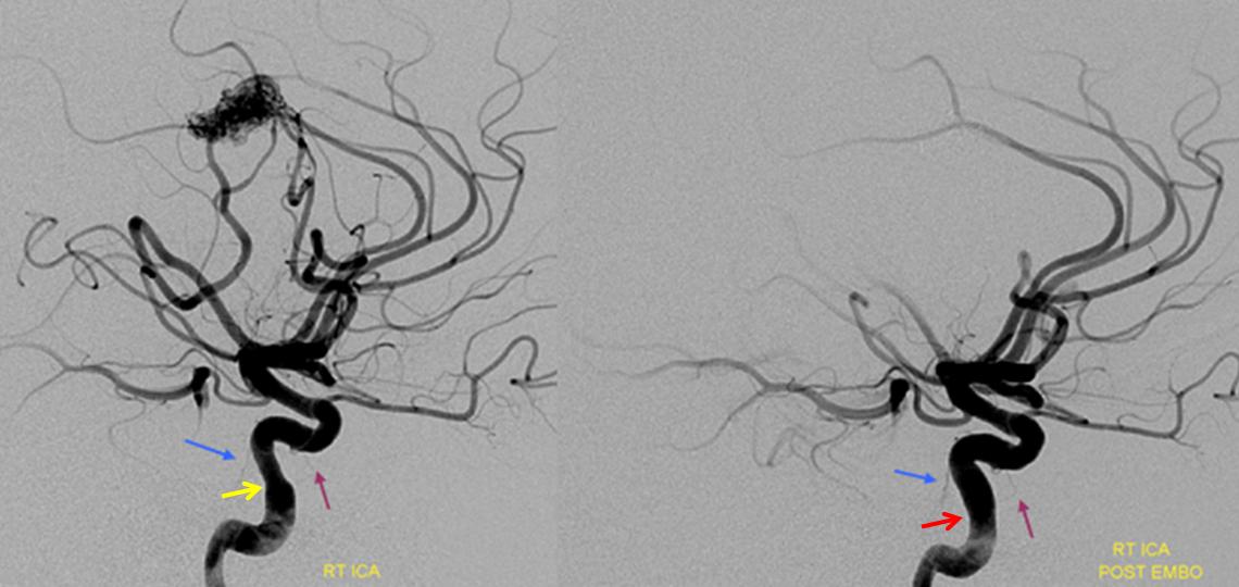 internal carotid artery anatomy pdf