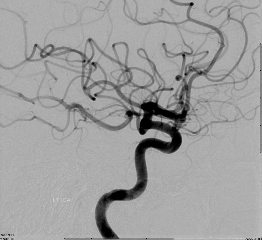 Distal ICA origin Ophthalmic Artery
