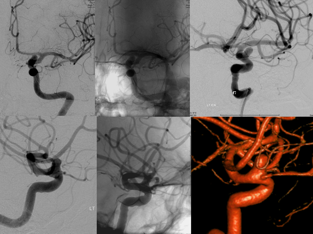 Superiorly projecting ophthalmic aneurysm
