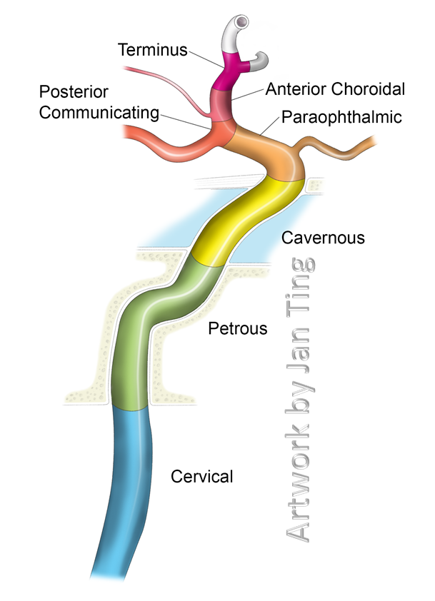 Internal Carotid Artery And Its Aneurysms Neuroangio