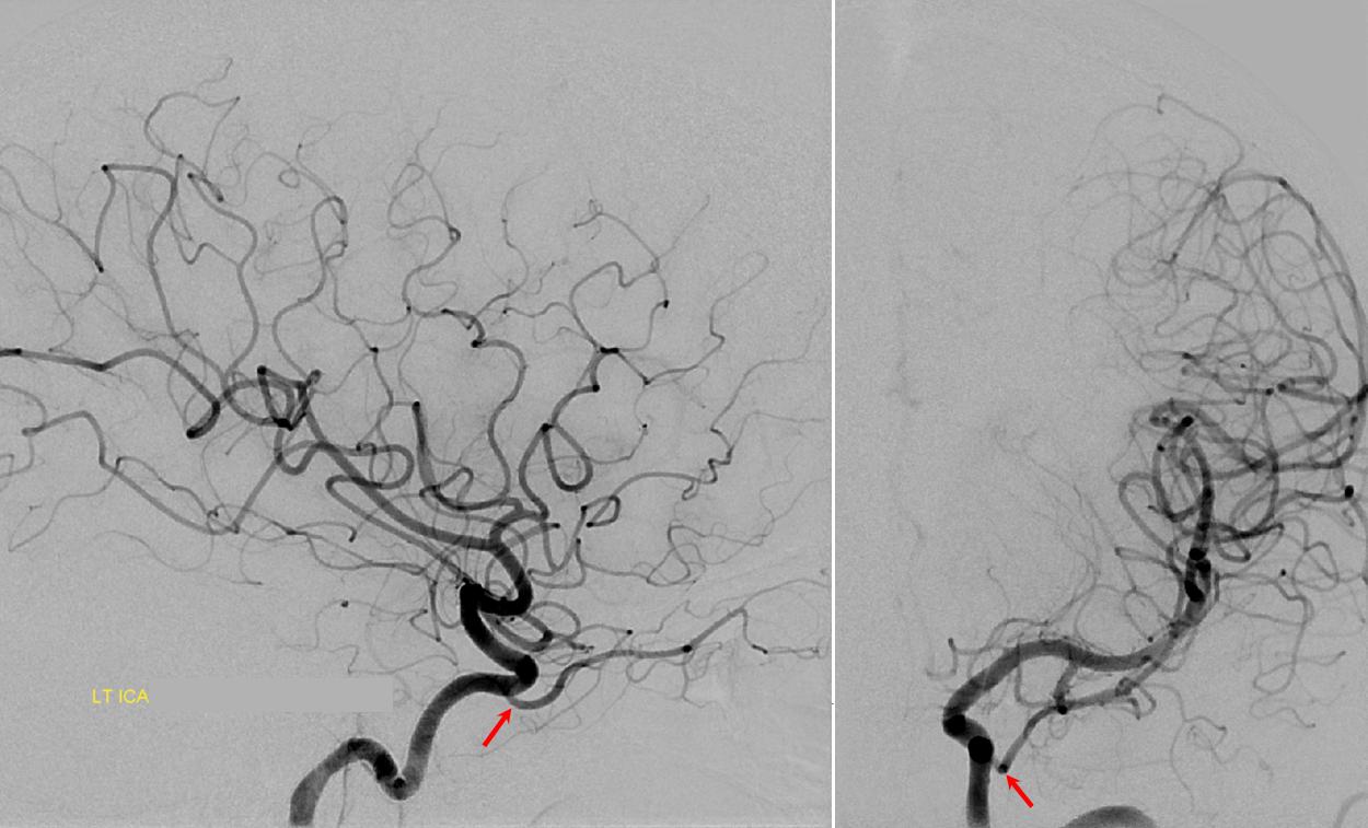Dorsal Ophthalmic Artery