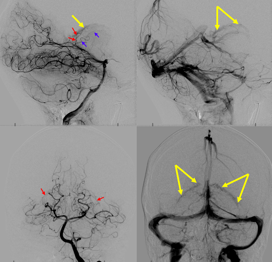 Lateral and Medial Choroidal Arteries