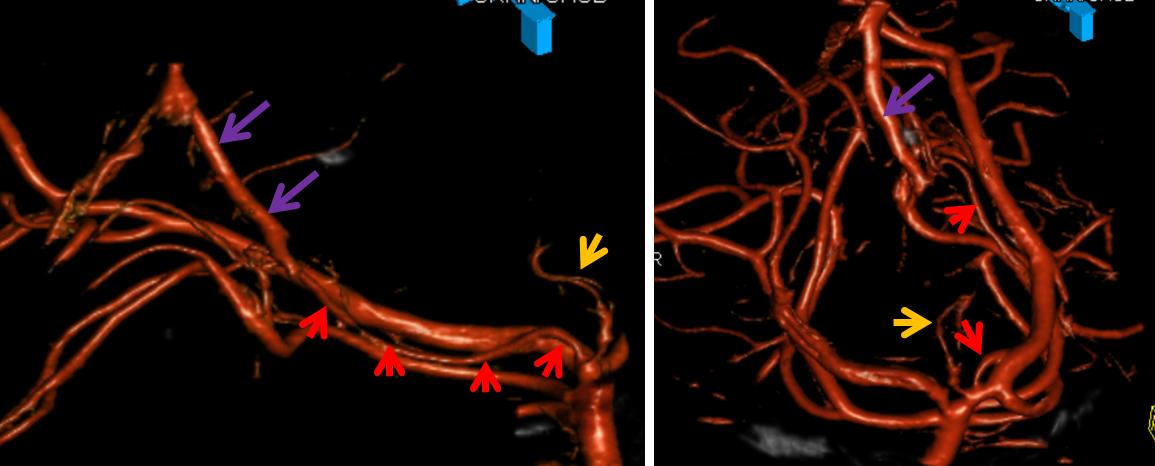 Posterior Cerebral Artery Collicular Branch
