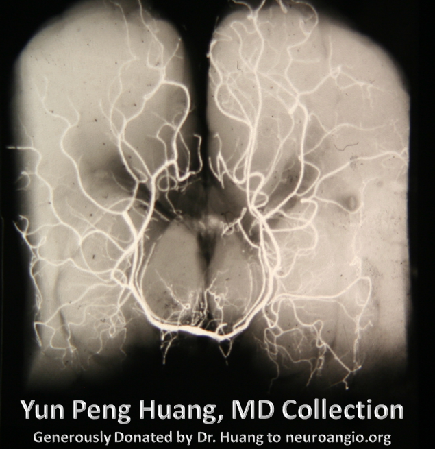 PSA x-ray specimen Yung Peng Huang Collection