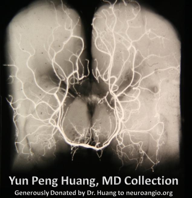 Posterior Cerebral Artery Neuroangio