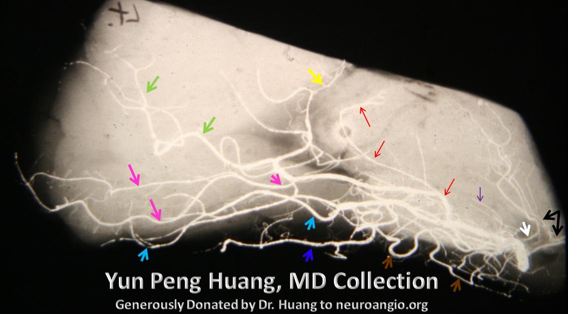 Yun Peng Huang Collection PCA lateral