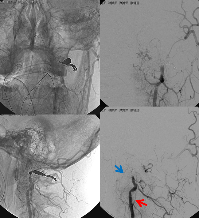 Lateral Spinal Aneurysm