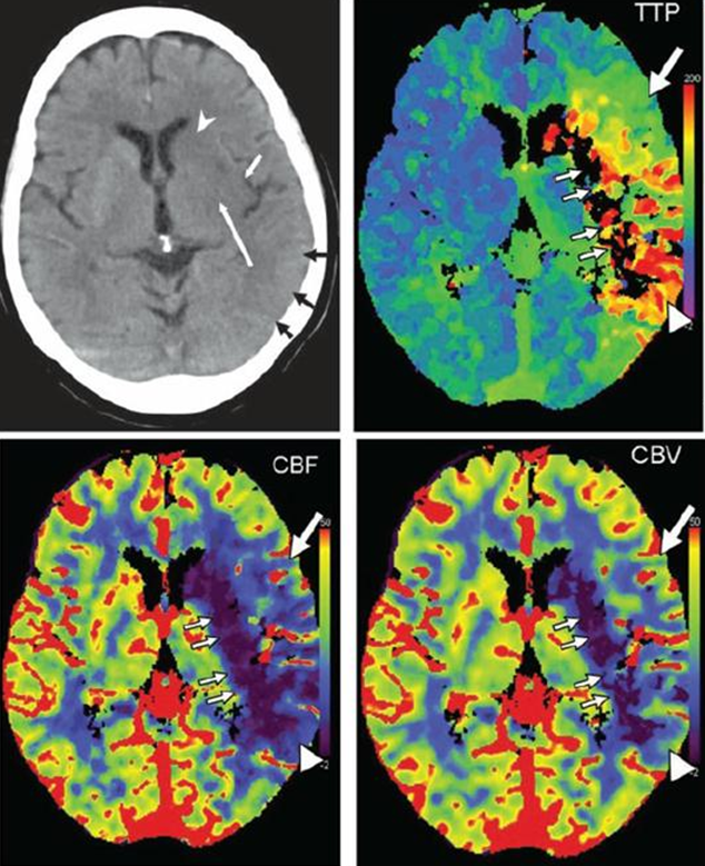 Cerebral CT angiography and CT perfusion in acute stroke ...