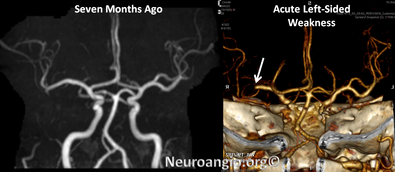 http://neuroangio.org/wp-content/uploads/Perfusion/Perfusion_23.png