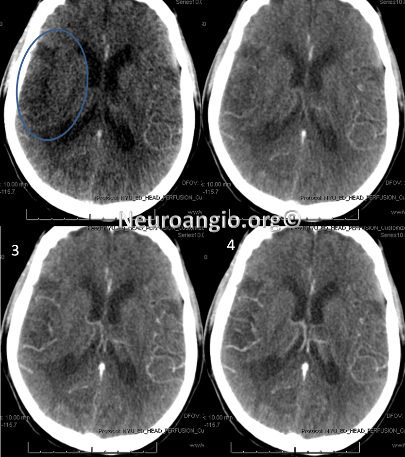 http://neuroangio.org/wp-content/uploads/Perfusion/Perfusion_24.png