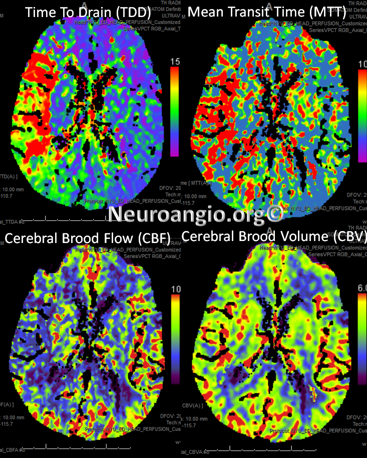 http://neuroangio.org/wp-content/uploads/Perfusion/Perfusion_25.png