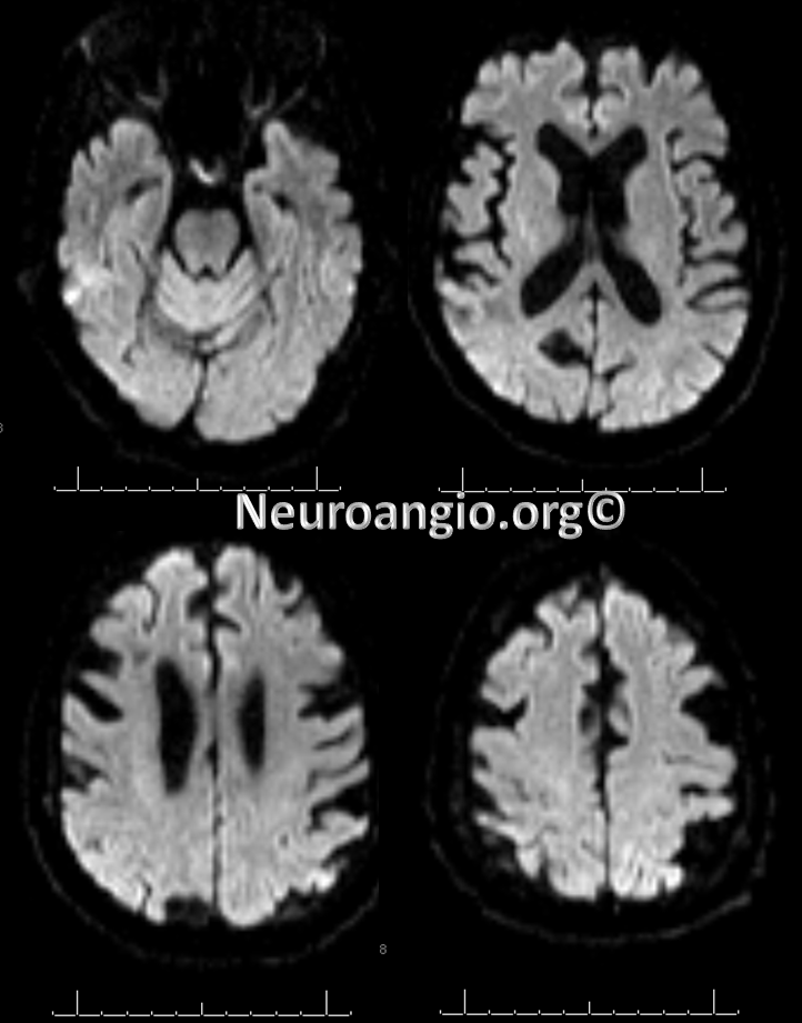http://neuroangio.org/wp-content/uploads/Perfusion/Perfusion_27.png