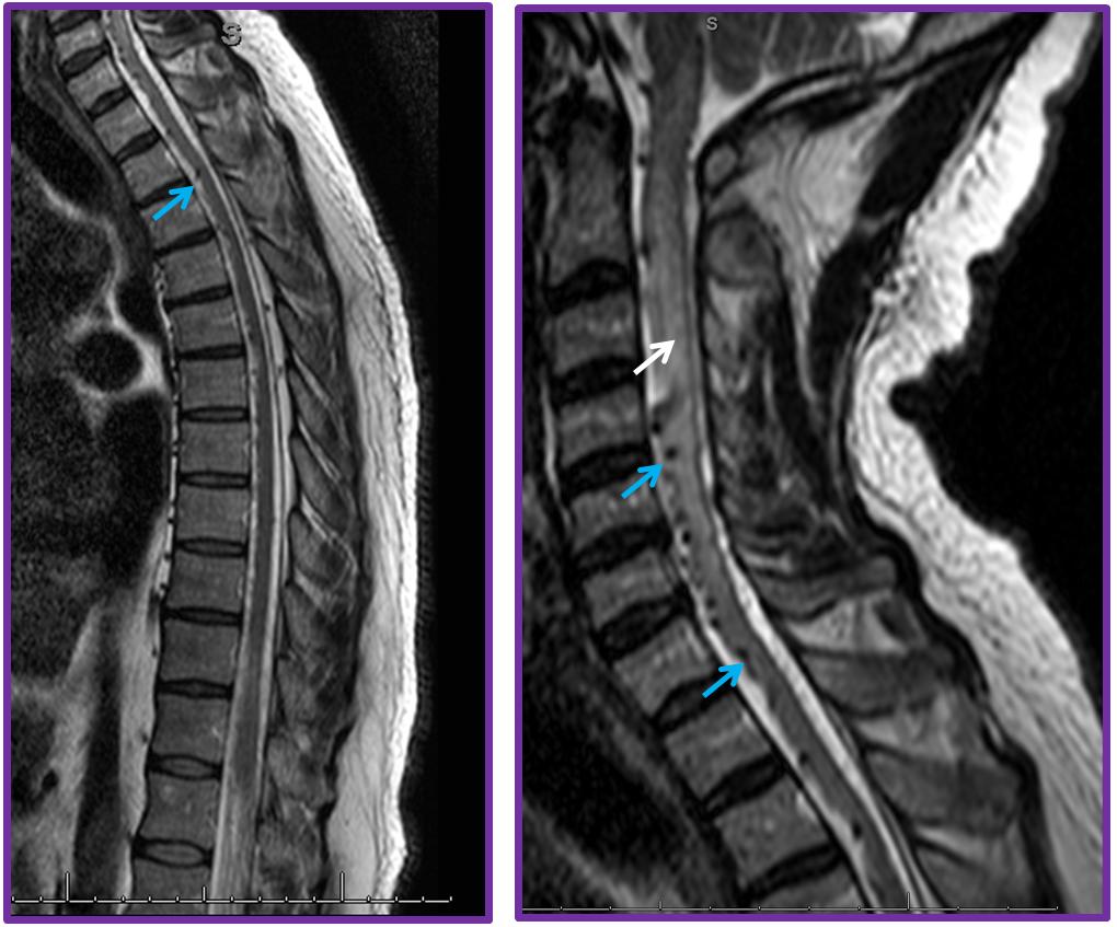 Spinal Dural Fistula | neuroangio.org