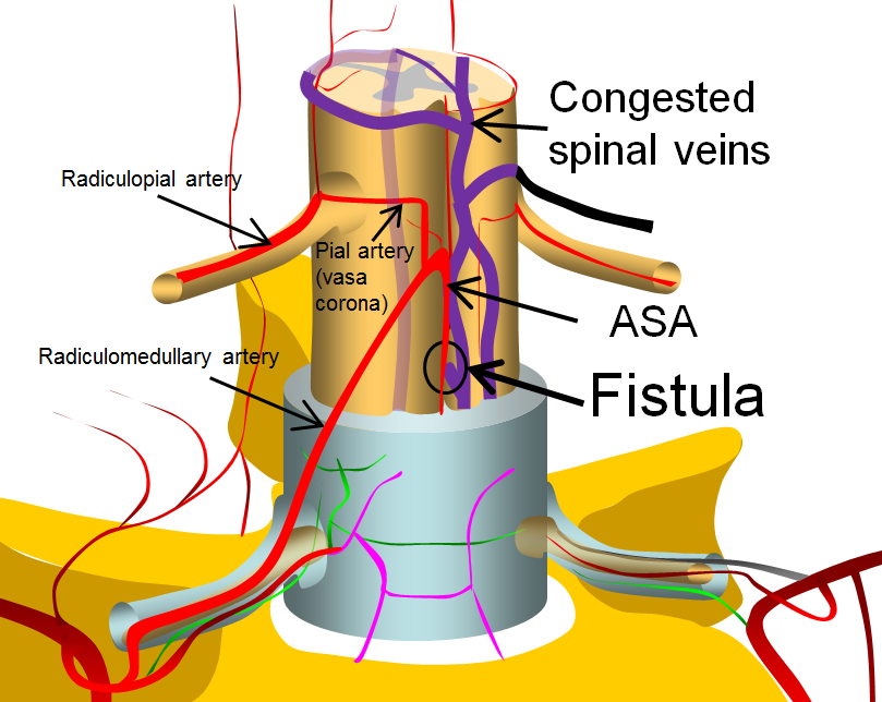 spinal intradural fistula