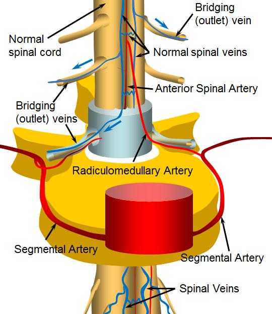 Spinal artery anatomy