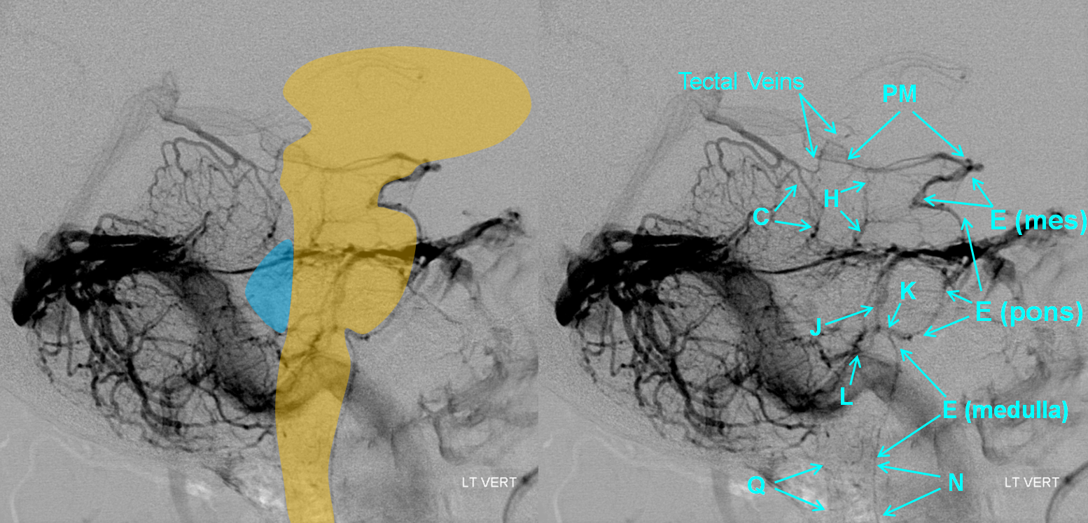 http://neuroangio.org/wp-content/uploads/Venous/Posterior_Fossa_Veins/V_anterior_group_brainstem_overlay.png