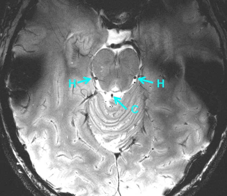 http://neuroangio.org/wp-content/uploads/Venous/Posterior_Fossa_Veins/V_lateral_mesencephalic_vein_precentral_vein_MRI_7T.png