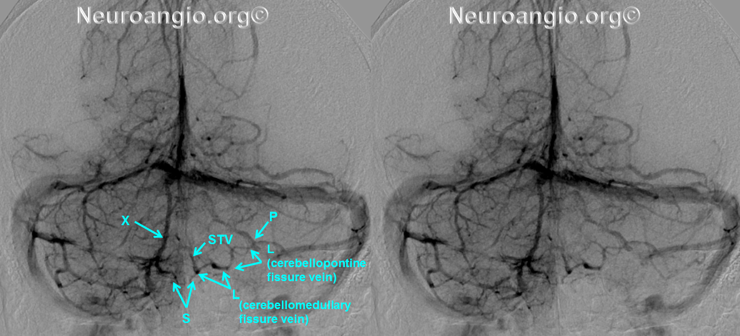 http://neuroangio.org/wp-content/uploads/Venous/Posterior_Fossa_Veins/V_lateral_recess_vein_tributaries.png