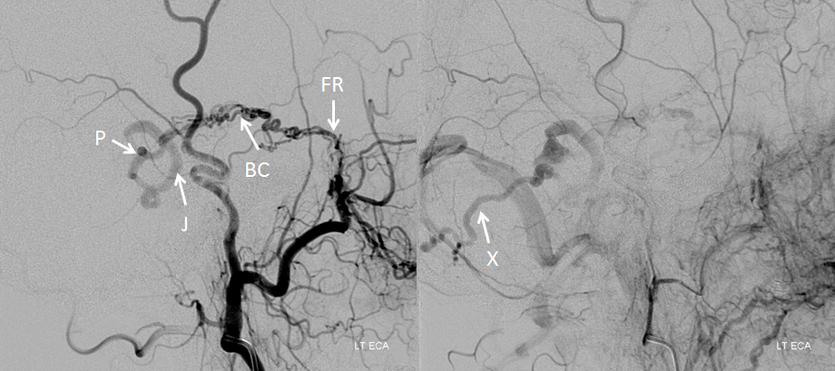 http://neuroangio.org/wp-content/uploads/Venous/Posterior_Fossa_Veins/V_petrosal_fistula_angio.png