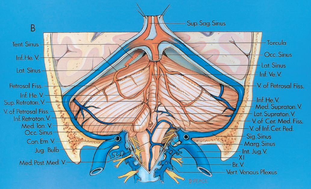 4th ventricle and its veins | neuroangio.org