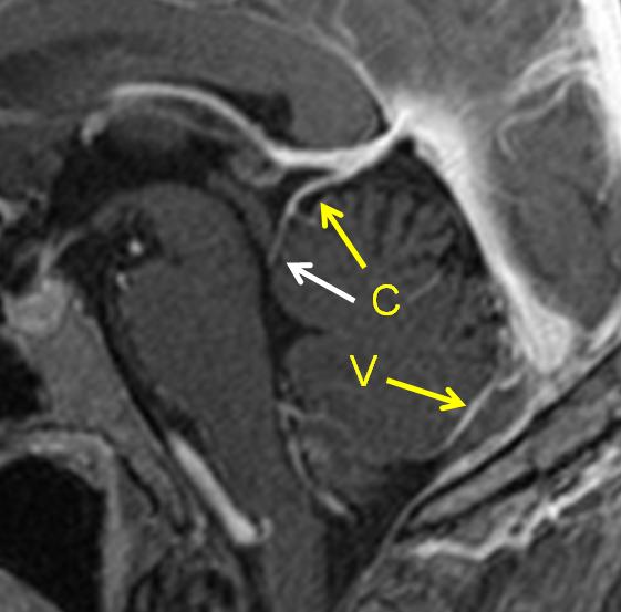 http://neuroangio.org/wp-content/uploads/Venous/Posterior_Fossa_Veins/V_precentral_vein_MRI_2.png