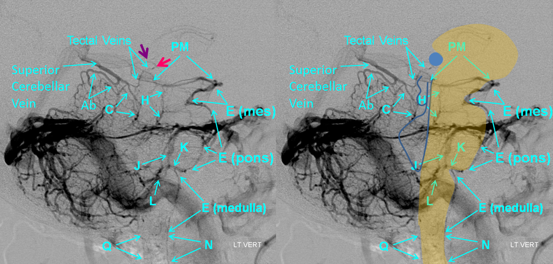 http://neuroangio.org/wp-content/uploads/Venous/Posterior_Fossa_Veins/V_tectal_veins_pineal.png