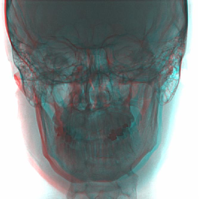 Skull anaglyph