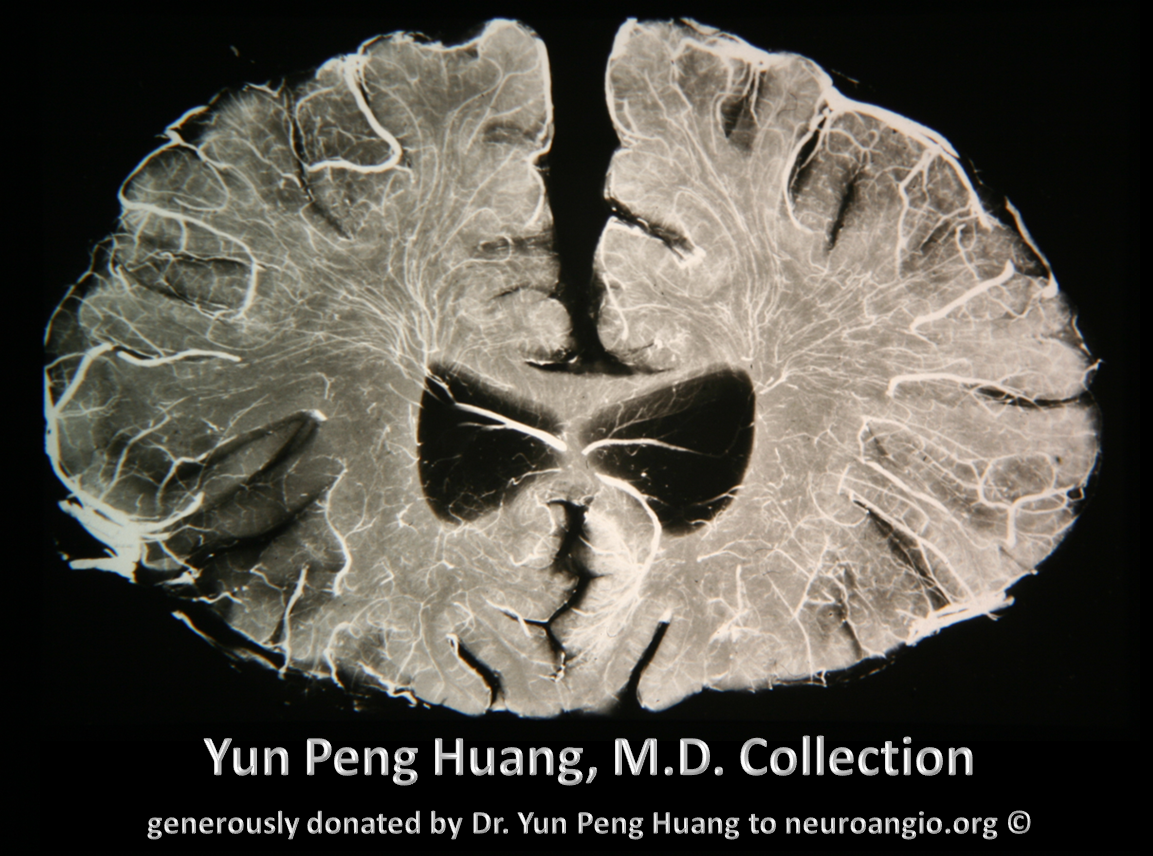 Yun Peng Huang frontal specimen spinal cord analogy