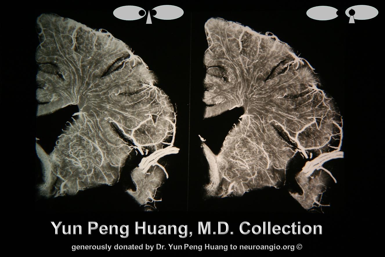 Yun Peng Huang Frontal Specimen Medullary Veins Stereo
